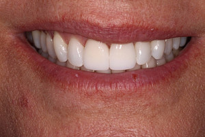 implant-veneers-whitening-after