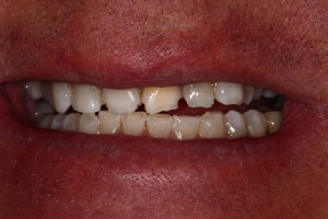 whitening-crowns-before